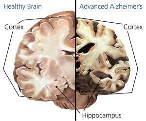 Zmiany w mózgu osoby, którą dotknęła choroba Alzheimera