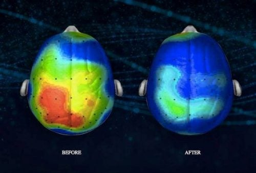 Aktywność mózgu do i po medytacji