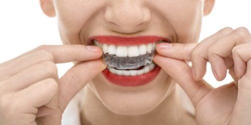 Szyna zabezpieczające zęby