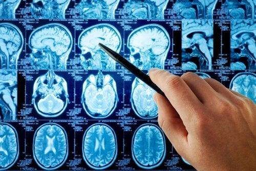 Zdjęcie rentgenowskie mózgu - płat czołowy