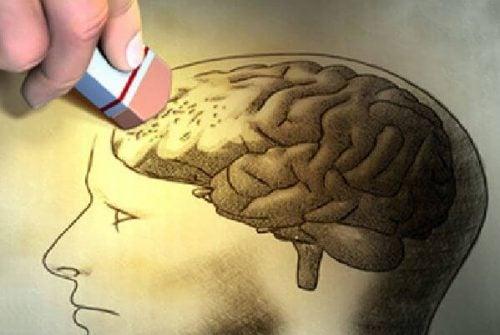 Wymazywanie obszaru mózgu