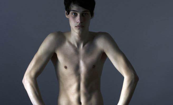 Nastolatek z anoreksją