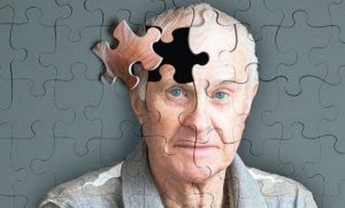 Objawy Alzheimera: 5 znaków ostrzegawczych