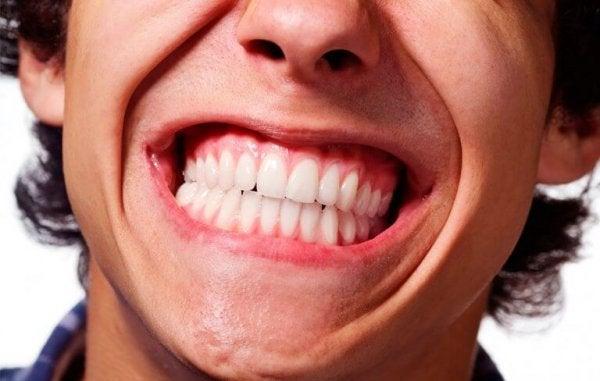 Zacisnięte zęby.