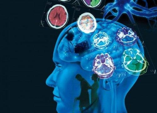 Stwardnienie rozsiane - mózg człowieka