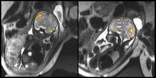 Zdjęcia płodu - obrazowanie aktywności mózgu