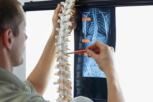 Skolioza - 4 ćwiczenia aby jej zapobiec i mieć lepszą posturę ciała