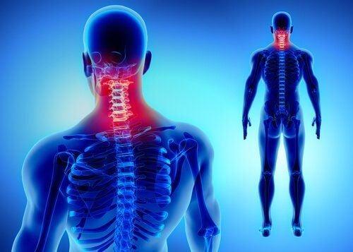 Przyczyny bólu szyi
