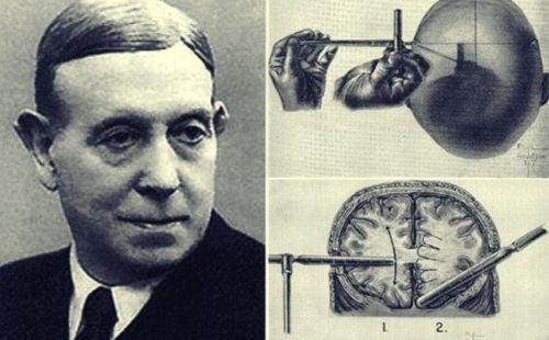 Egas Moniz i niesamowita historia lobotomii
