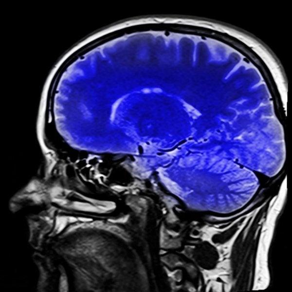 Obraz mózgu.