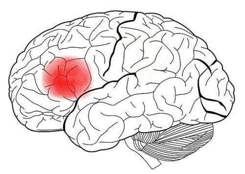 Obszar Broki w mózgu