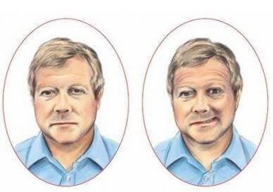 Asymetria twarzy udar
