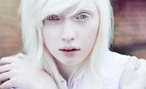 Życie z albinizmem: coś więcej niż wygląd fizyczny