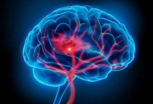 Zespół serotoninowy - czym jest i w jaki sposób go leczyć?