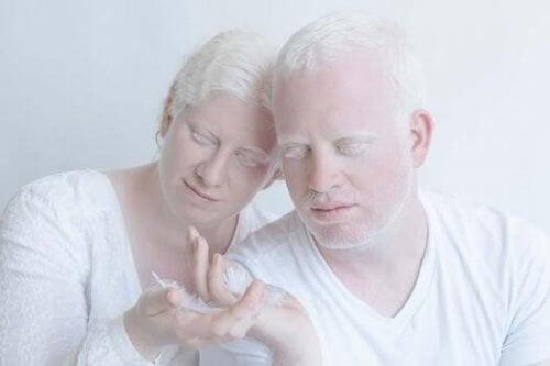 Para albinosów