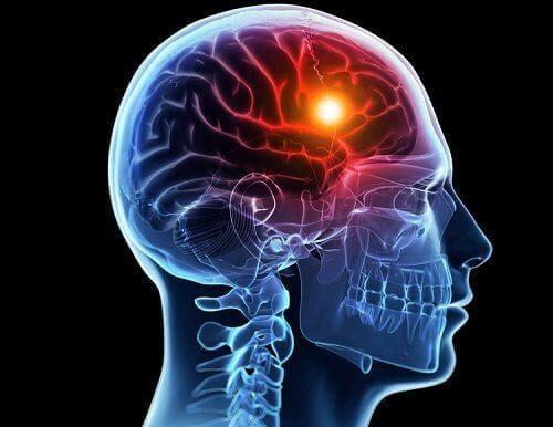 Udar mózgu: poznaj jego przyczyny i rodzaje