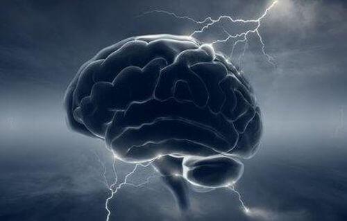 Mózg - migreny i dopamina