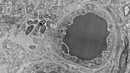 Mikrobiom mózgu a bakterie jelitowe - jaki mają związek?