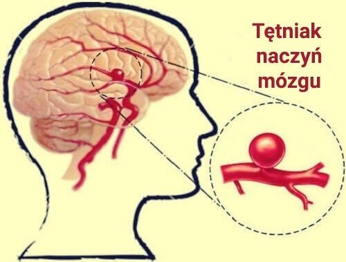 Tętniak naczyń mózgu - dowiedz się czegoś więcej o tej chorobie