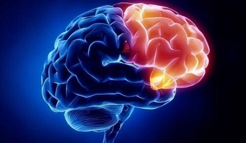 Obszar winy w mózgu