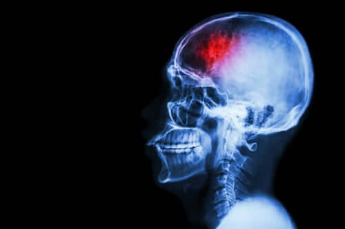 Udar mózgu - rezonans