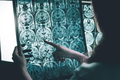 Fale gamma przeciwko chorobie Alzheimera