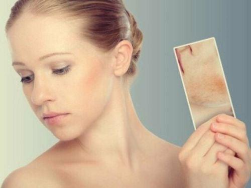 Wysypka i plamy ze stresu: jak skóra reaguje na emocje