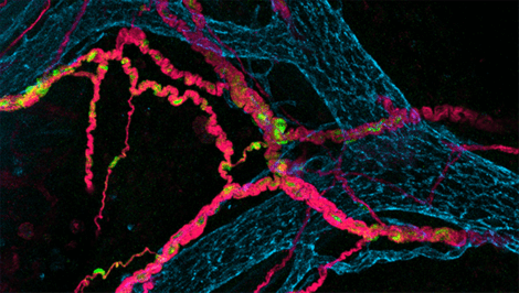 Neurony jelitowe